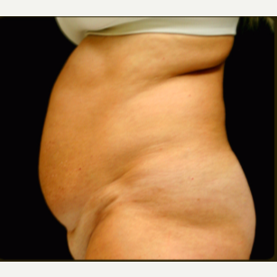 65-74 year old woman treated with Tummy Tuck before 3738086