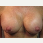 55-64 year old woman treated with Breast Lift after 3088319