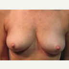 55-64 year old woman treated with Breast Lift before 3088319