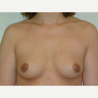 32 y/o Transaxillary Submuscular Breast Augmentation before 3066354