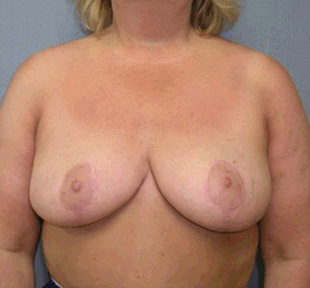 Breast Reduction after 906314