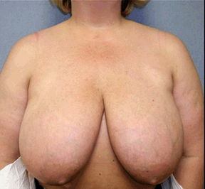 Breast Reduction before 906314