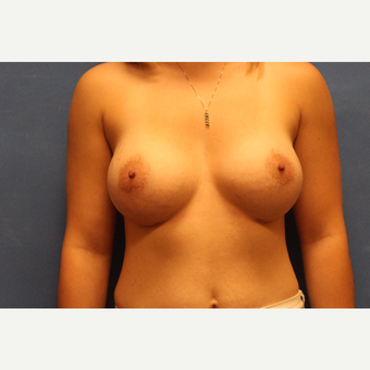 18-24 year old woman treated with Breast Augmentation after 3782823