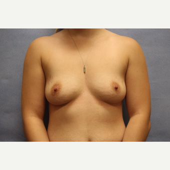 18-24 year old woman treated with Breast Augmentation before 3782823