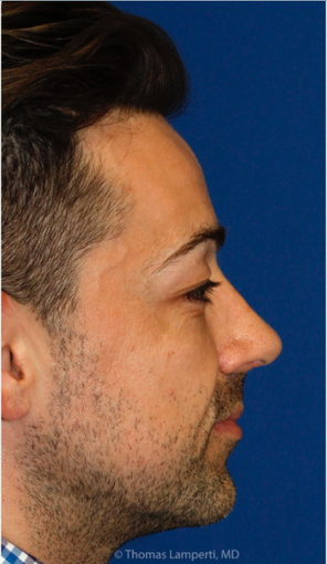 Combined Rhinoplasty and Silicone Chin Implantation after 3672456
