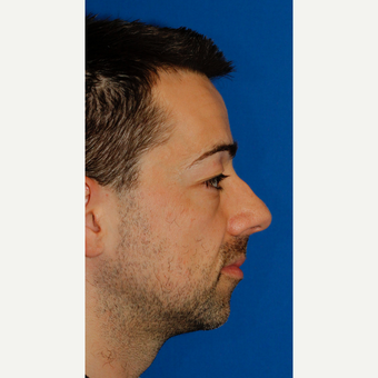 Combined Rhinoplasty and Silicone Chin Implantation before 3672456
