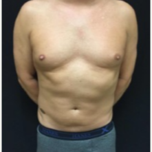 35-44 year old man treated with CoolSculpting to the Abdominal Fat. after 3423838