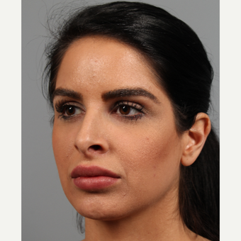 25-34 year old woman treated with Rhinoplasty before 3287112