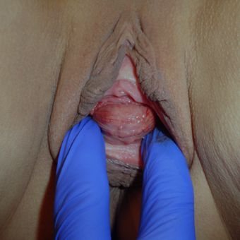 25-34 year old woman treated with Vaginal Rejuvenation before 2760937