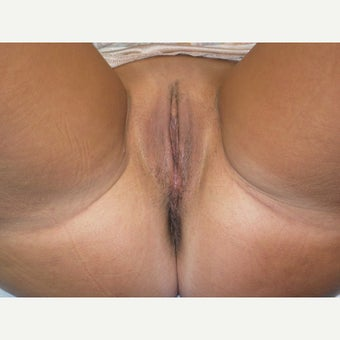 35-44 year old woman treated with Vaginal Rejuvenation after 2134839