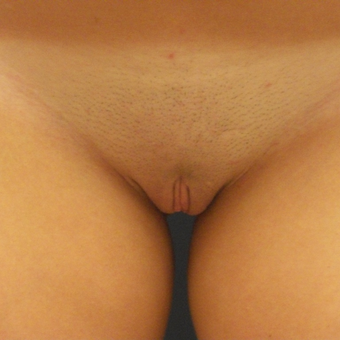 18-24 year old woman treated with Labiaplasty after 3176834