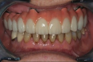 55-64 year old woman treated with Dental Implants after 3241923