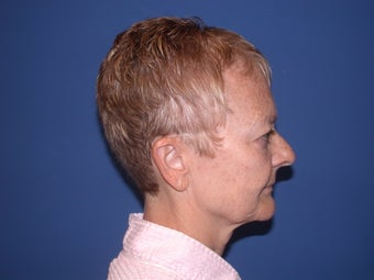 Neck lift before 199102