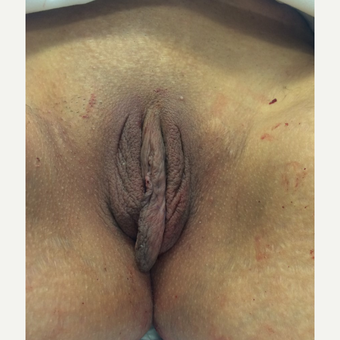 25-34 year old woman treated with Labiaplasty before 3293285