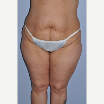 35-44 year old woman treated with Tummy Tuck before 3589980