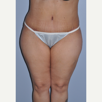 35-44 year old woman treated with Tummy Tuck after 3589980