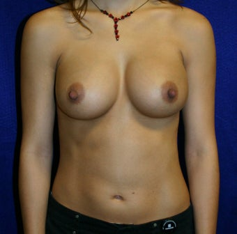 Breast Augmentation  after 346435
