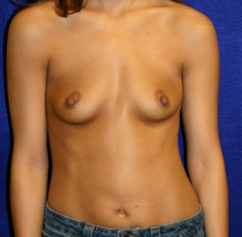 Breast Augmentation  before 346435