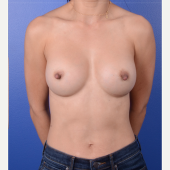 35-44 year old woman treated with Breast Implants after 3804823