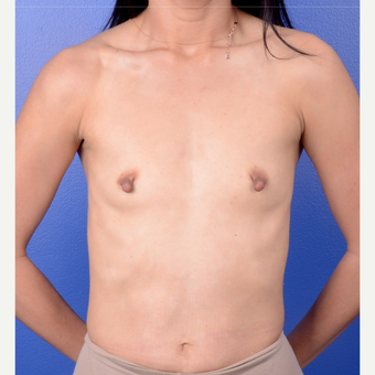 35-44 year old woman treated with Breast Implants before 3804823