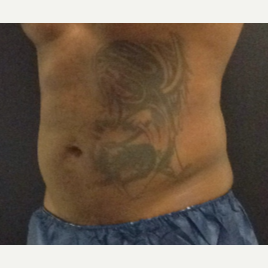 35-44 year old man treated with SculpSure after 3624927
