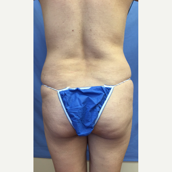 35-44 year old woman treated with Smart Lipo before 3371579