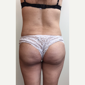 35-44 year old woman treated with Smart Lipo after 3371579