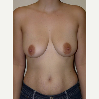 Woman treated with Breast Lift with Implants before 1773468