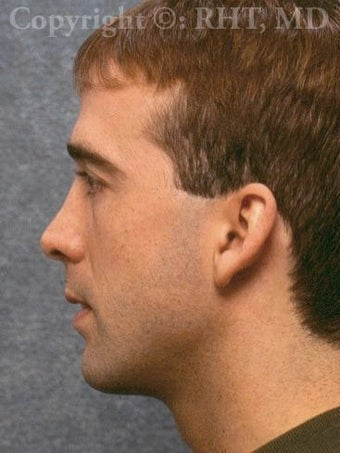 Rhinoplasty after 318339
