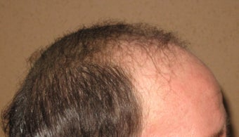 Hair transplant from chest to scalp
