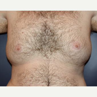 25-34 year old man treated with Male Breast Reduction before 3093966