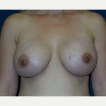 25-34 year old woman treated with Breast Implants after 3454926