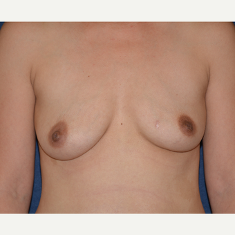 25-34 year old woman treated with Breast Implants before 3454926