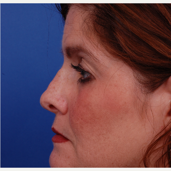 35-44 year old woman treated with Rhinoplasty before 3180093