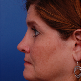 35-44 year old woman treated with Rhinoplasty after 3180093