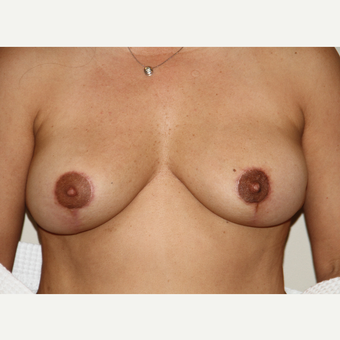 51 year old woman treated with Breast Lift after 3493501