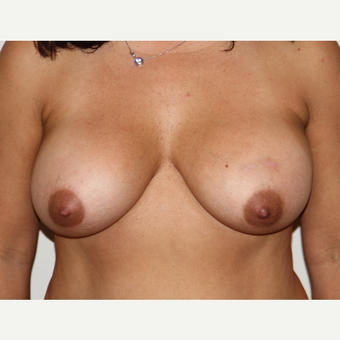 51 year old woman treated with Breast Lift before 3493501