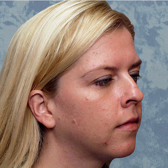 Rhinoplasty before 3124865