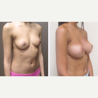 25-34 year old woman treated with Breast Augmentation before 3299901