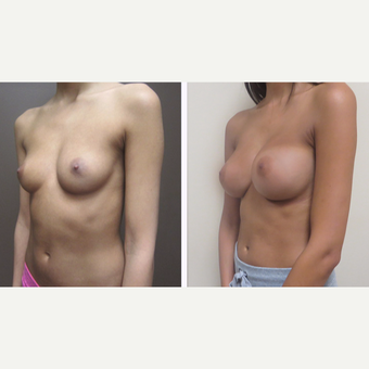 25-34 year old woman treated with Breast Augmentation after 3299901
