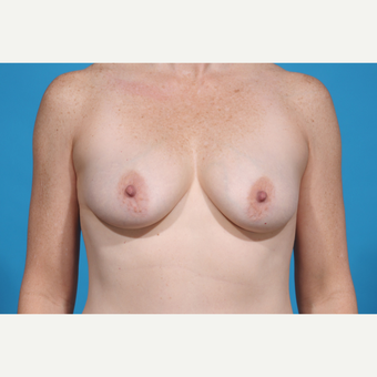 35-44 year old woman treated with Breast Lift with Implants before 3777060
