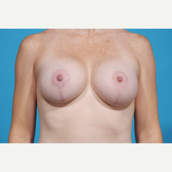 35-44 year old woman treated with Breast Lift with Implants after 3777060