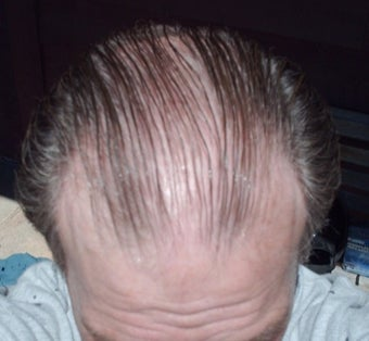 55-64 year old man treated with FUE Hair Transplant before 3671050