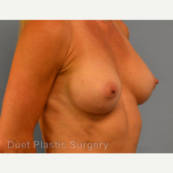 45-54 year old woman treated with Breast Augmentation after 3342147