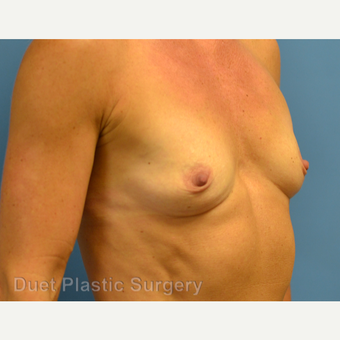 45-54 year old woman treated with Breast Augmentation before 3342147
