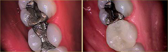Posterior Resin Filling placed after removing Amalgam & Recurrent Decay before 1402592