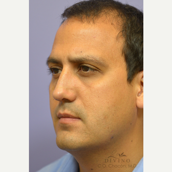 35-44 year old man treated with Rhinoplasty after 3391954
