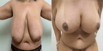 25-34 year old woman treated with Breast Implants before 3460869
