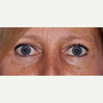 45-54 year old woman treated with Eyelid Surgery after 3030494