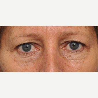 45-54 year old woman treated with Eyelid Surgery before 3030494